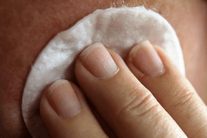 a person using a cotton pad to apply cream for subclinical acne