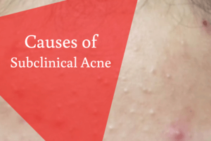 Causes of Subclinical Acne