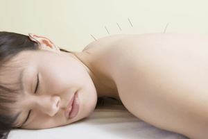 Acupuncture For Acne – Does It Really Work?