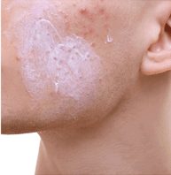 benzoyl peroxide cream on a person's cheek